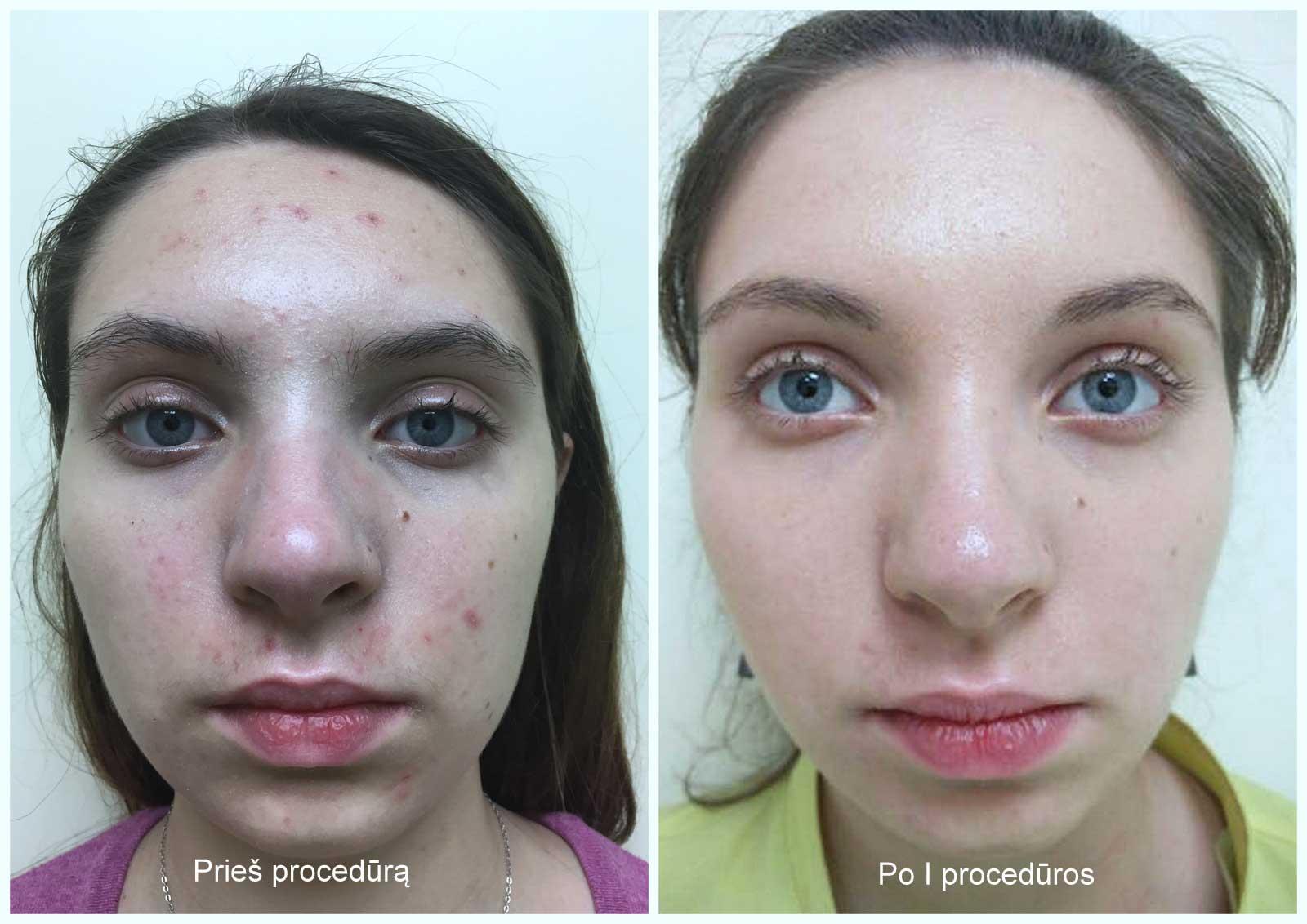 prf Dermatologijoje