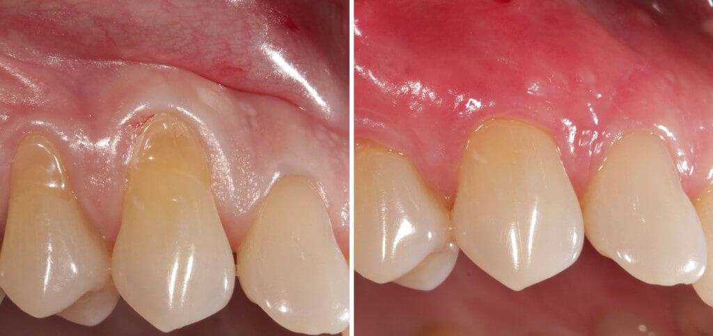 PRF odontologijoje